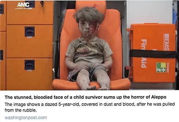 Aleppo survivor